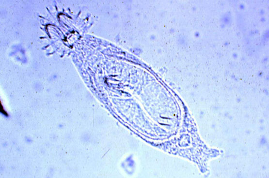 Fische: Hautwürmer behandeln